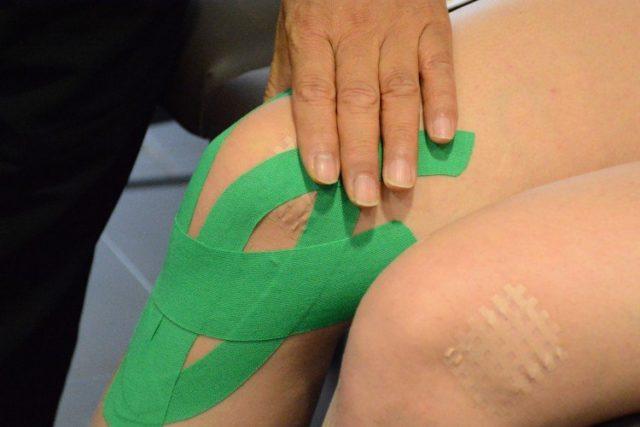 Данная технология предполагает использование эластичных тейпов, накладываемых по линиям расположения мышц