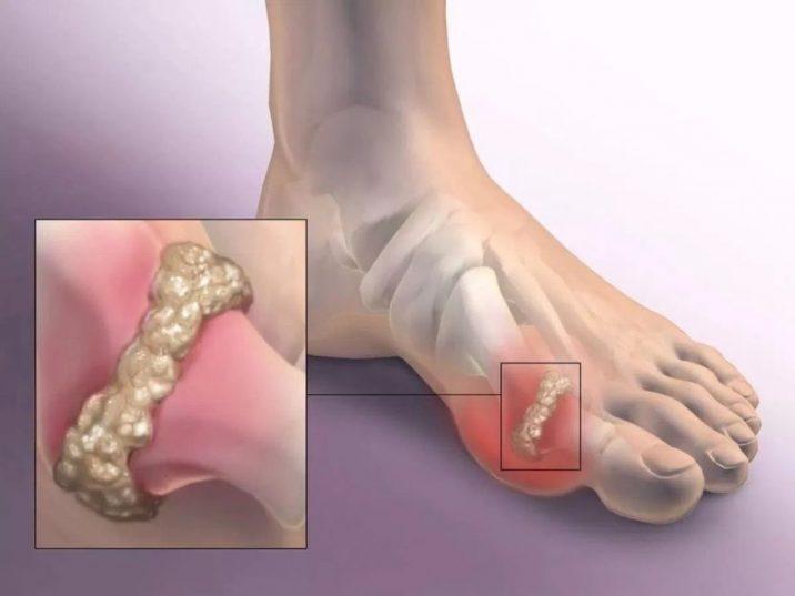 Артрит артроз 1 плюснефалангового сустава лечение