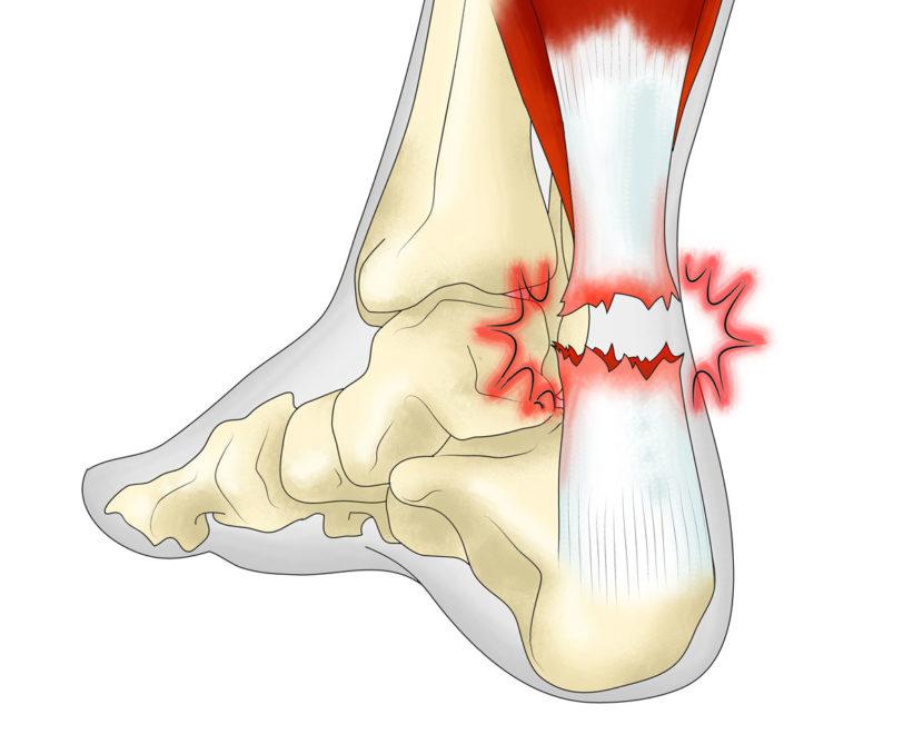 Бурсит ахиллова сухожилия — причины, симптомы и лечение