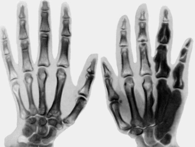 Бурсит большого пальца руки лечение