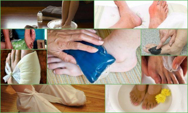 Народные средства от подагры компрессы мази ванночки отвары и настойки