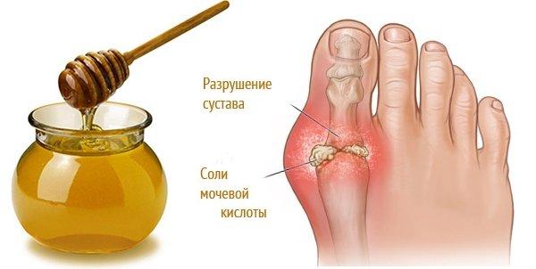Мед и аспирин от подагры