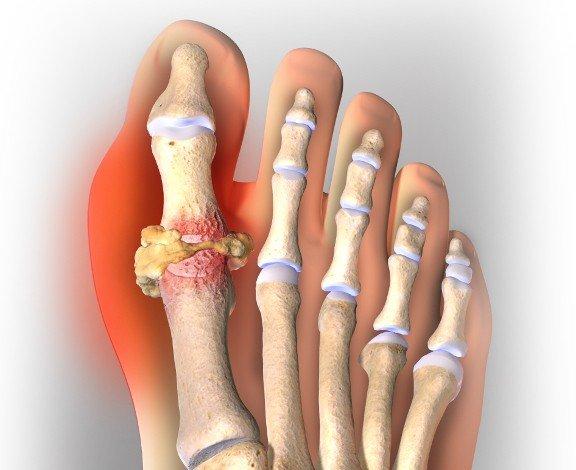 Самое эффективное лечение подагры на ногах