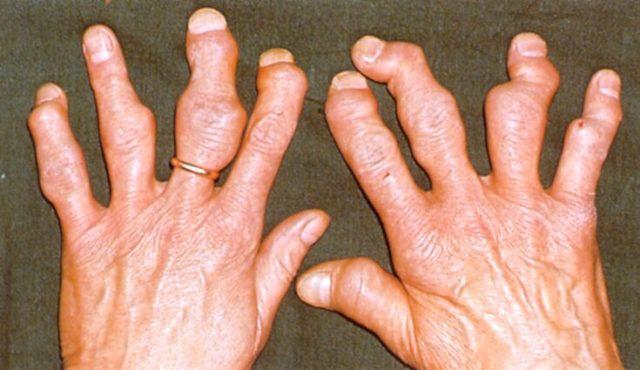 Изображение - Подагра суставов рук симптомы Podagra-na-rukah-2-e1534250006658
