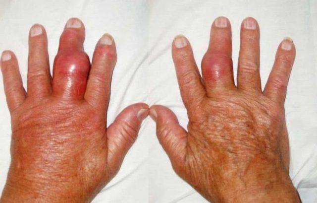 Изображение - Подагра суставов рук симптомы Podagra-na-rukah-e1534249827181