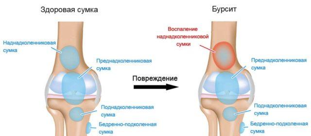 Супрапателлярный бурсит коленного сустава как вылечить