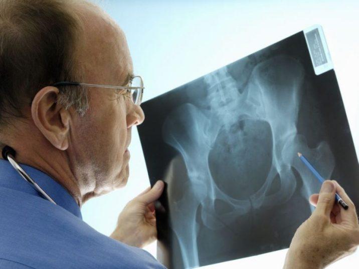 Бурсит локтевого сустава лечение к какому врачу