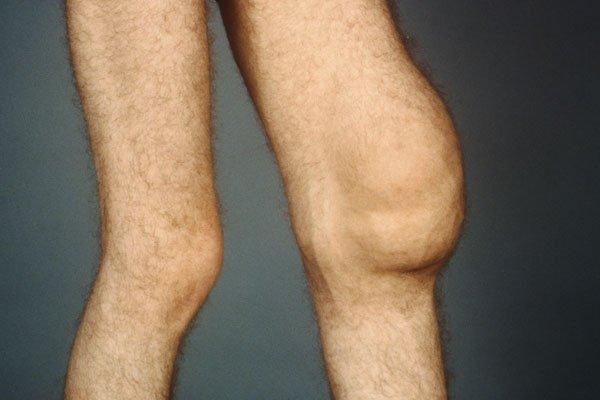 Лекарства для лечение бурсита коленного сустава