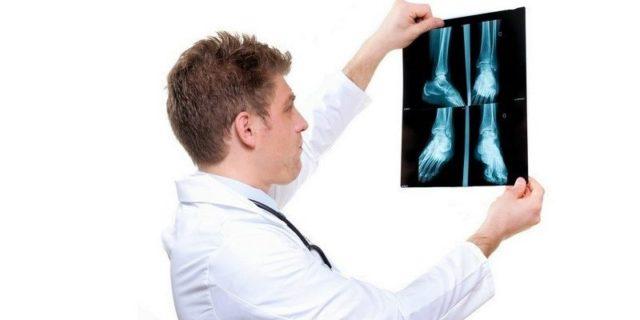 Заболевание бурсит как лечить от чего возникает