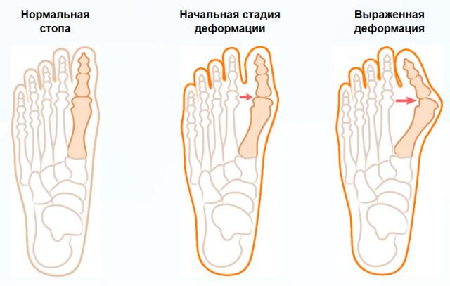 Подагра на ногах: что это такое, симптомы, признаки у мужчин и женщин
