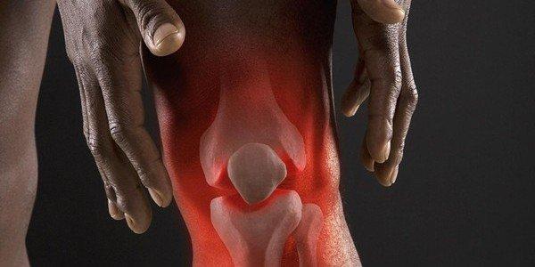 Какие уколы делают при артрозе коленного сустава
