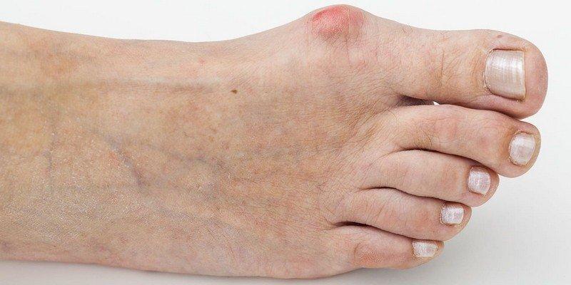 Как снять боль при подагре в домашних условиях: лечение приступов