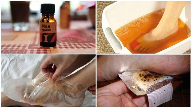 Пяточная шпора: симптомы и быстрое лечение в домашних условиях народными средствами